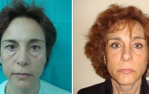 Blepharoplasty — Case 1
