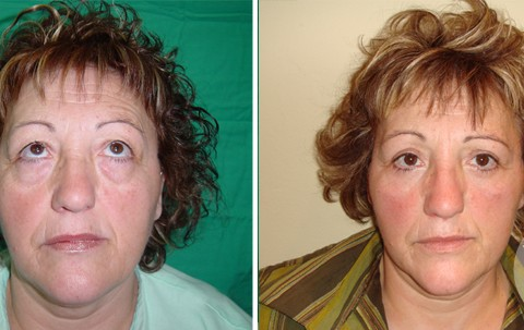 Blepharoplasty — Case 3