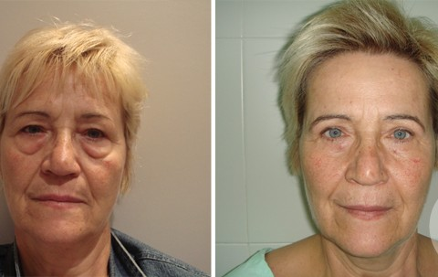 Blepharoplasty — Case 5
