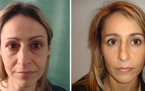 Blepharoplasty — Case 7
