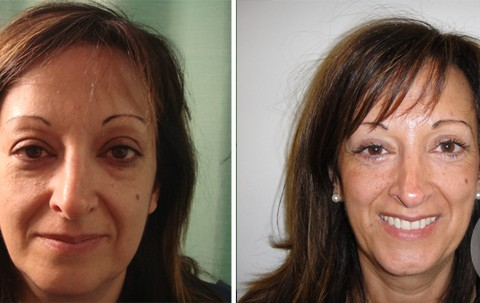 Blepharoplasty — Case 8