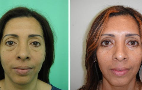 Blepharoplasty — Case 10