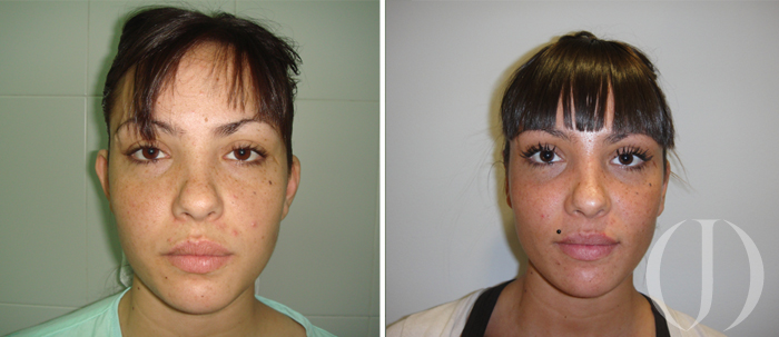 Confirm. non surgical otoplasty for adults sense