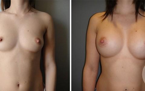 Breast Augmentation R – Case 45 A