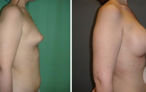 Tuberous breast – Case 51 B