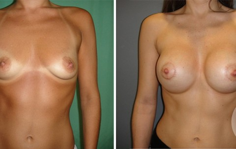 Tuberous breast – Case 52 A