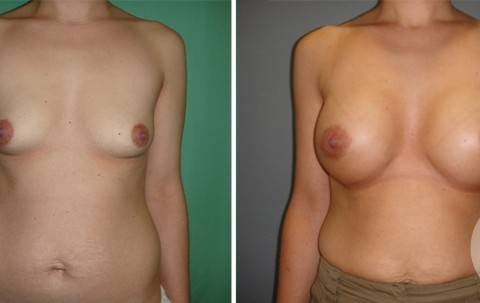 Breast Augmentation R – Case 46 A
