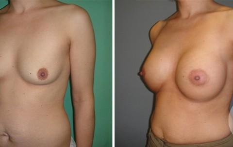 Breast Augmentation R – Case 46 B