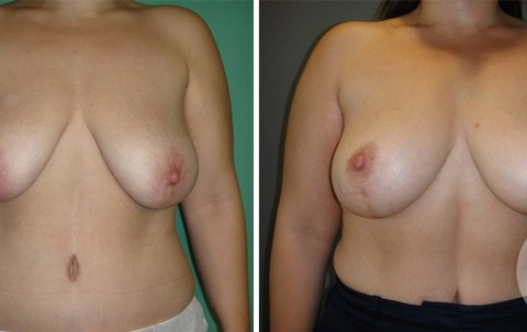 Breast lift – Case 7 A