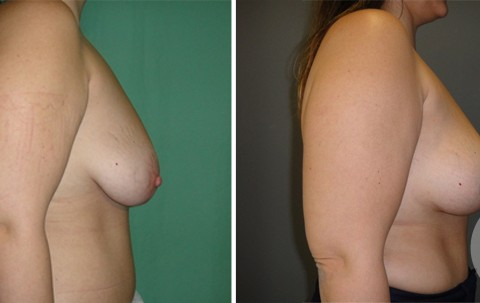 Breast lift – Case 7 B